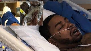 Lil Scrappy RUSHED To Hospital In Near-FATAL Car Crash After Falling Asleep Behind Wheel!